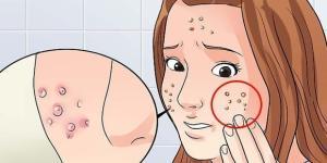 Apesar de incômodo, a acne é uma reação natural do nosso corpo