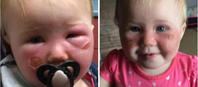 Bebê tem rosto todo queimado após utilização de protetor solar