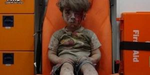 Siria, Aleppo: bambino ferito nei bombardamenti | Foto e Video - today.it