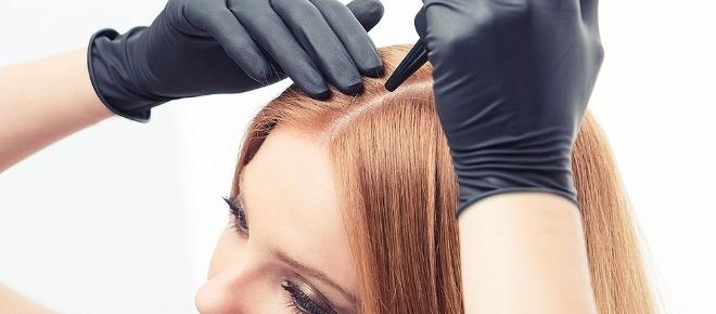 Teñirse el cabello. Qué tener en cuenta sobre las alergias a la coloración