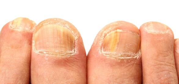 Natural Home Remedies for Removing Yellow Nails - Go Fit ... - gofitstayfit.com