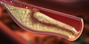 Creato il vaccino anti colesterolo