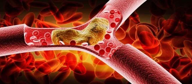 Vaccino contro il colesterolo, primi test e possibili rischi