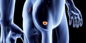 Caffé e tumore alla prostata: il legame è racchiuso in 3 tazzine ... - velvetbody.it