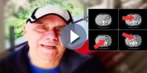 Apresentador Marcelo Rezende enfrenta câncer no pâncreas e no fígado