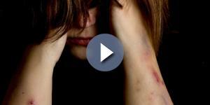 Menina fica traumatizada após ser violentada na escada do prédio onde mora (Foto: Shutterstock)