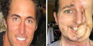 A história do homem que teve o rosto destruído - Google