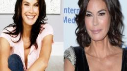 Ces célébrités totalement défigurées par la chirurgie !