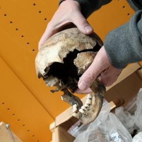 Uno de los cráneos medievales estudiados